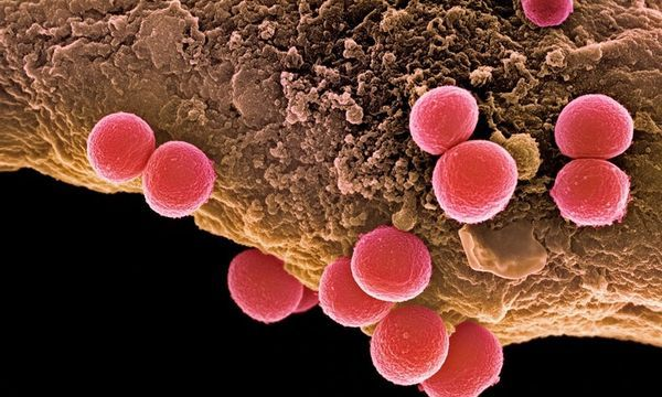Mind the Staph: London Is Crawling with Antibiotic-Resistant Microbes